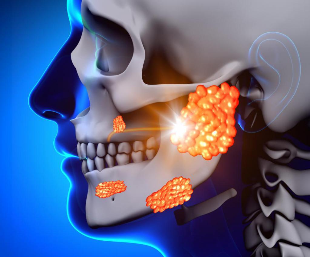 Слини-кам'яна хвороба (калькульозний сіалоаденіт)