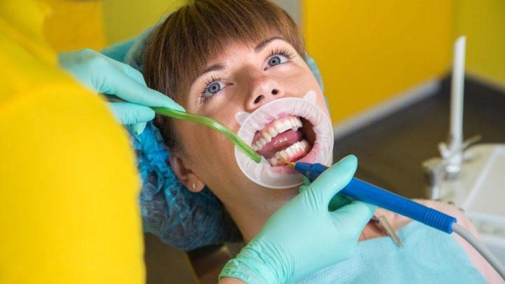 Ультразвукова чистка зубів – основні моменти