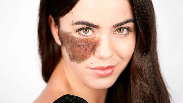 Доброякісні і злоякісні утворення шкіри. Види шкірних утворень