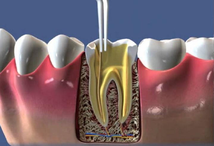 Симптоми і лікування гнійного абсцесу кореня зуба