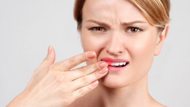 Причини кровоточивості ясен і запаху з рота