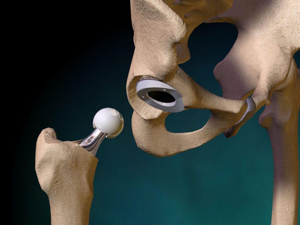 Що таке перелом шийки стегна і чим він небезпечний