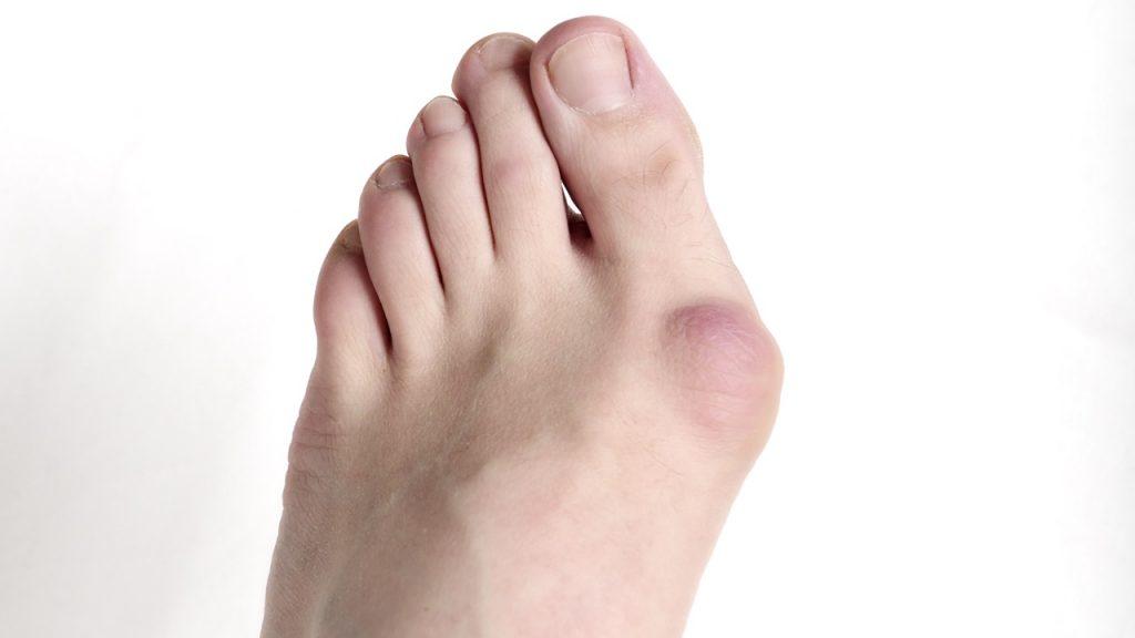 Халюс-Вальгус - кісточки на ногах: причини і лікування