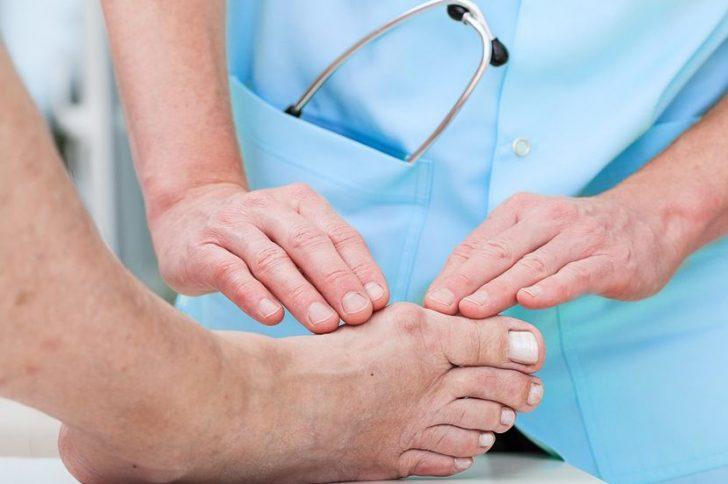 Халюс-Вальгус – кісточки на ногах: причини і лікування