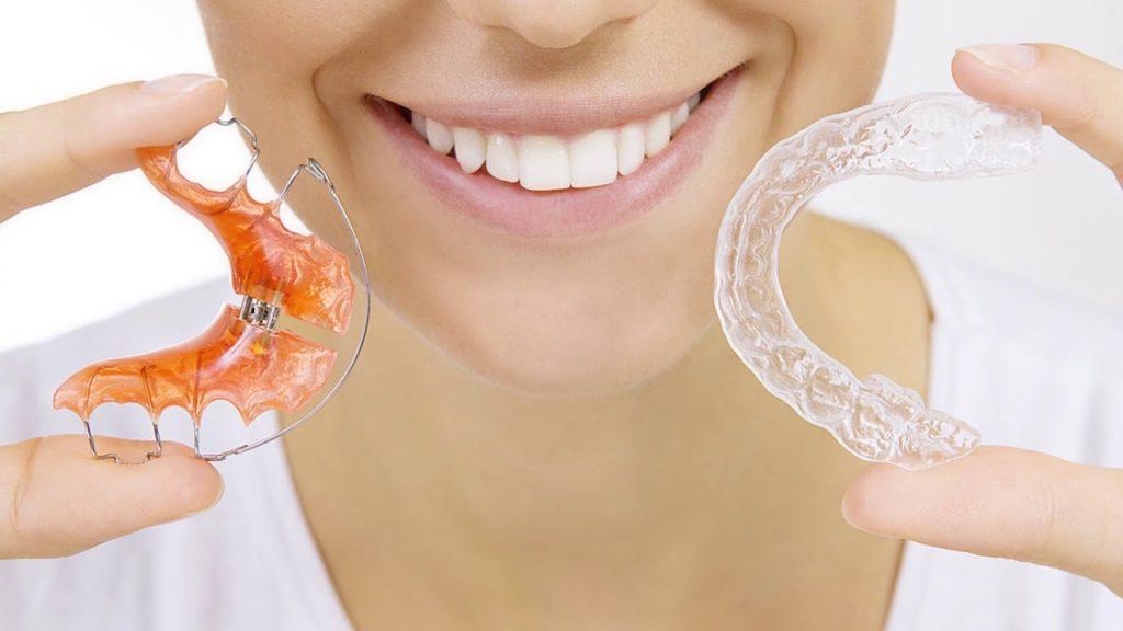 Скупченість зубів – причини, симптоми, діагностика