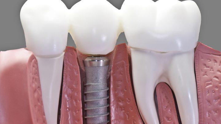 Імплантація передньої групи зубів