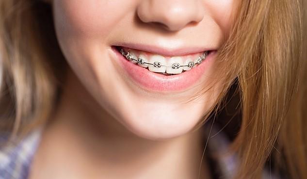 Здорові зуби в будь-якому віці. Вам встановили брекети. Що важливо знати?