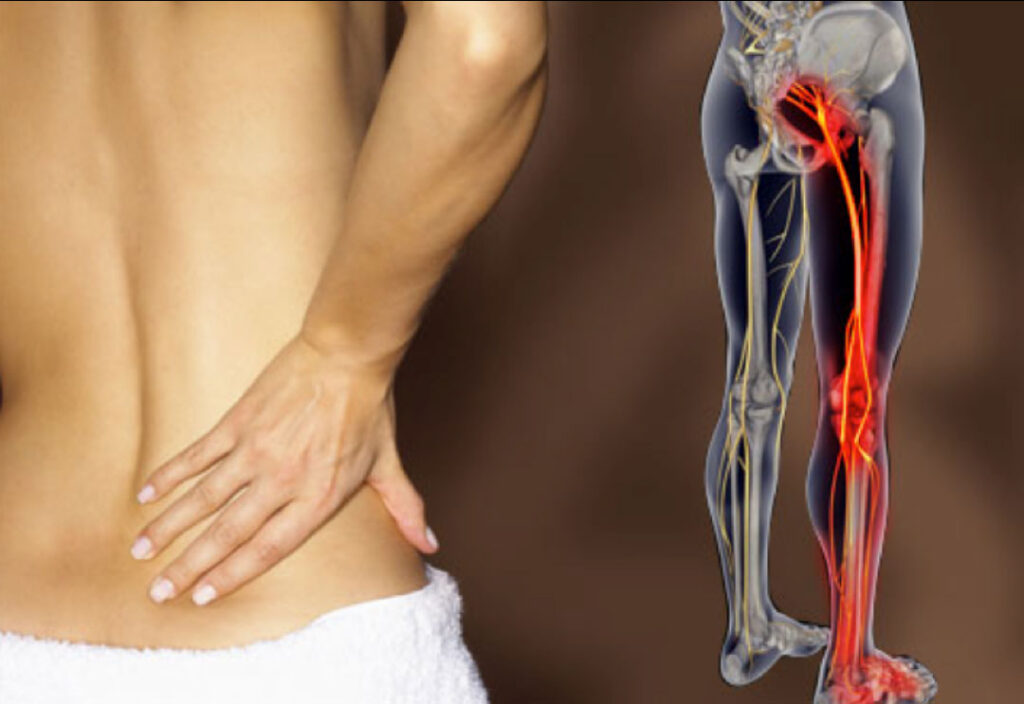 Неврит сідничного нерва (ішіас) - симптоми, причини
