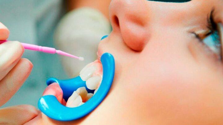 Фторування зубів: види, плюси і мінуси