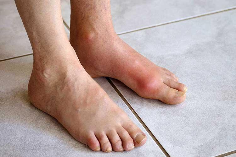 Гідроксіапатітним артропатия. Причини, симптоми і лікування