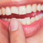 Відколовся шматочок зуба. Чи можливе відновлення його колишньої форми?