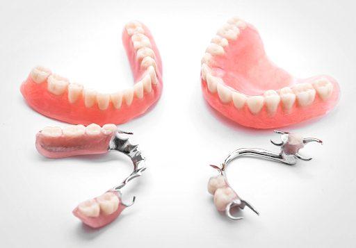 Бюгельний протез. Відновлення зубного ряду