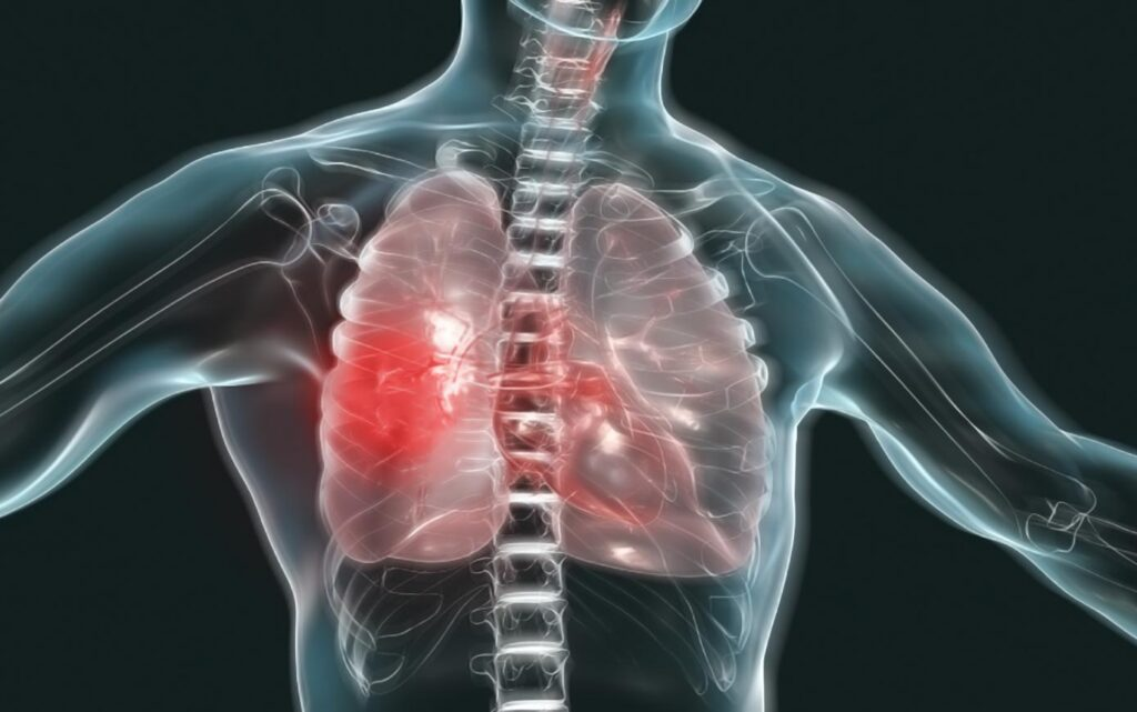 Гістіоцитоз X: діагностика