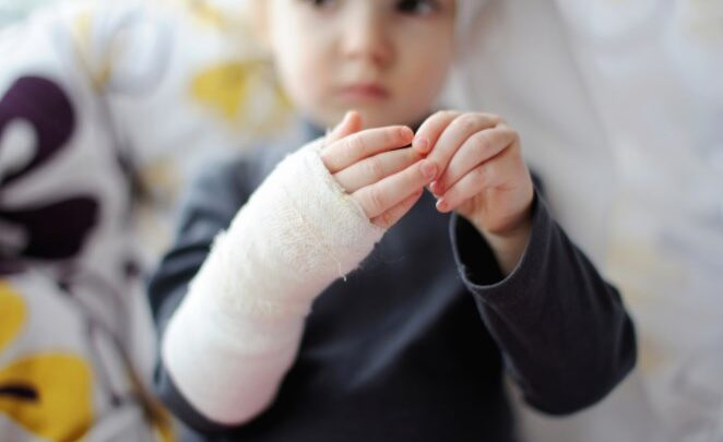 Наслідки опікових травм у дітей