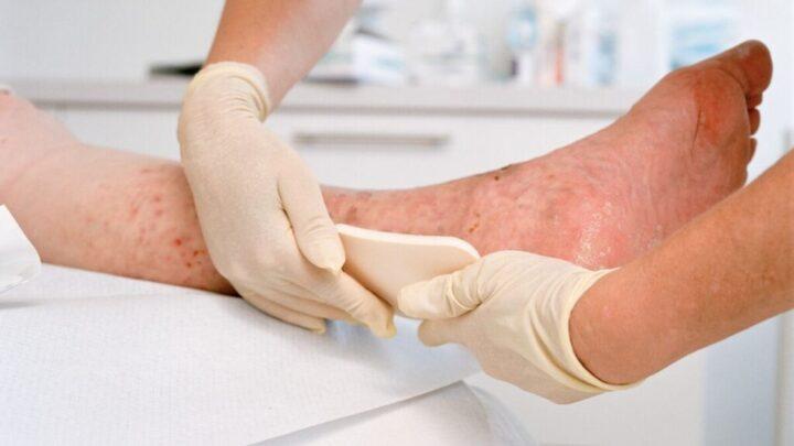 Лікування і догляд за венозними трофічними виразками