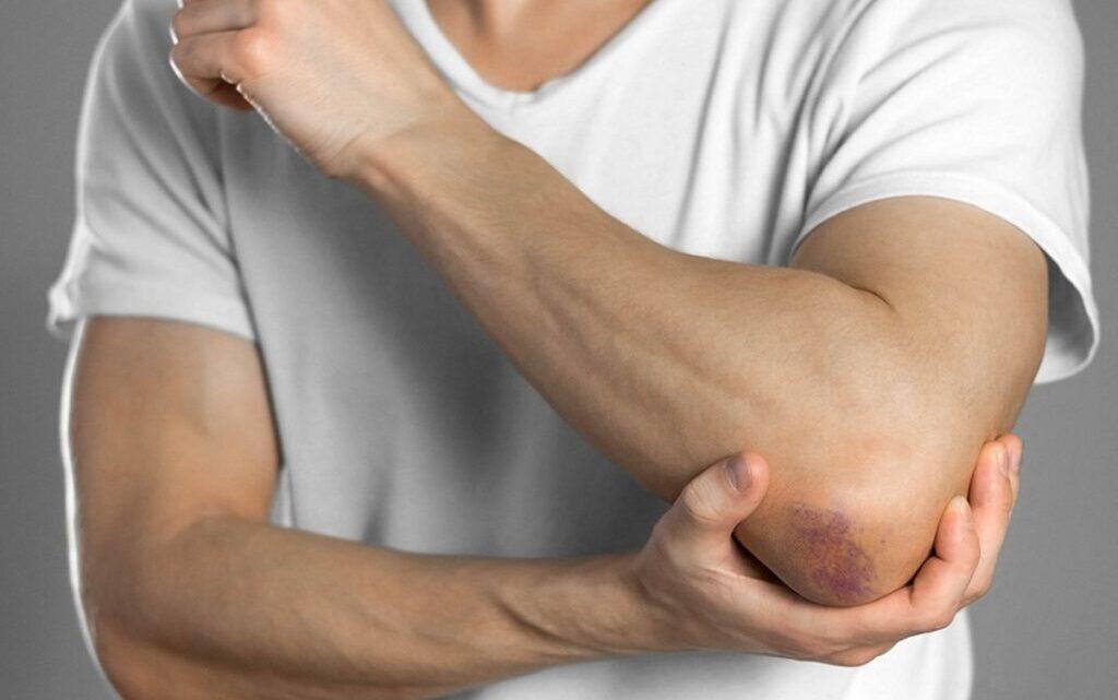 Розрив м'яза: причини, симптоми, діагностика, лікування