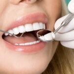 Ерозія емалі – як вона впливає на Ваші зуби