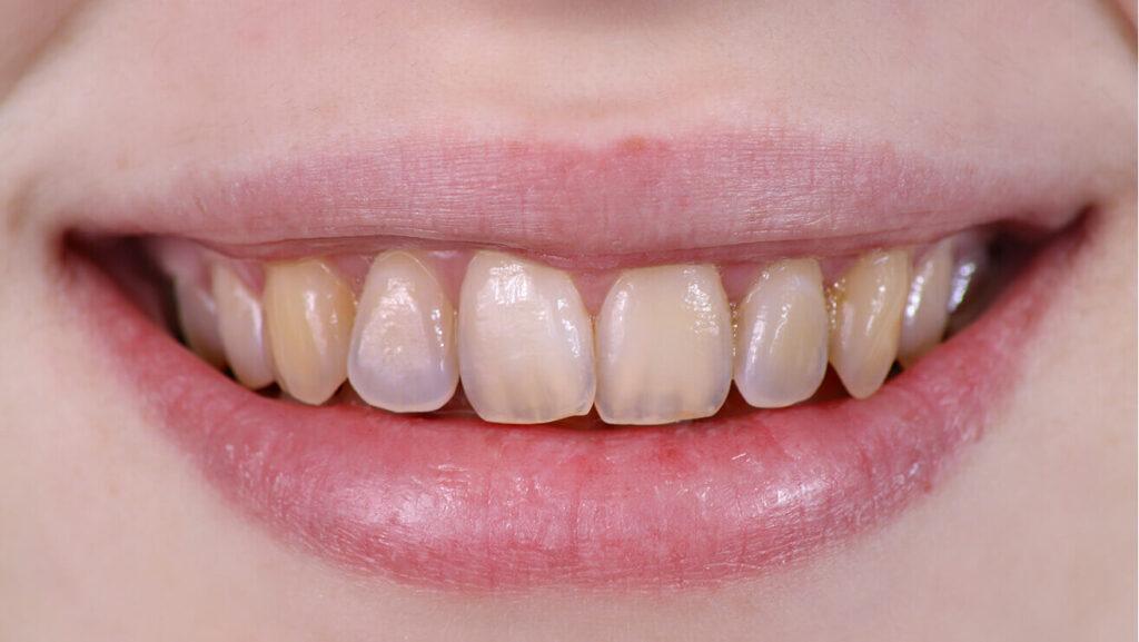 Ерозія емалі - як вона впливає на Ваші зуби