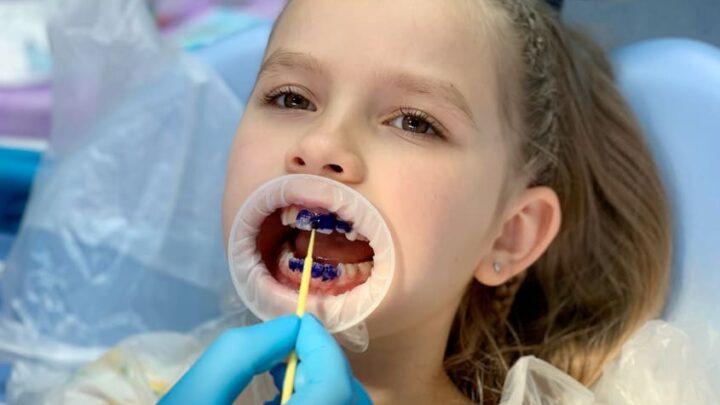 Особливості лікування дитячого карієсу