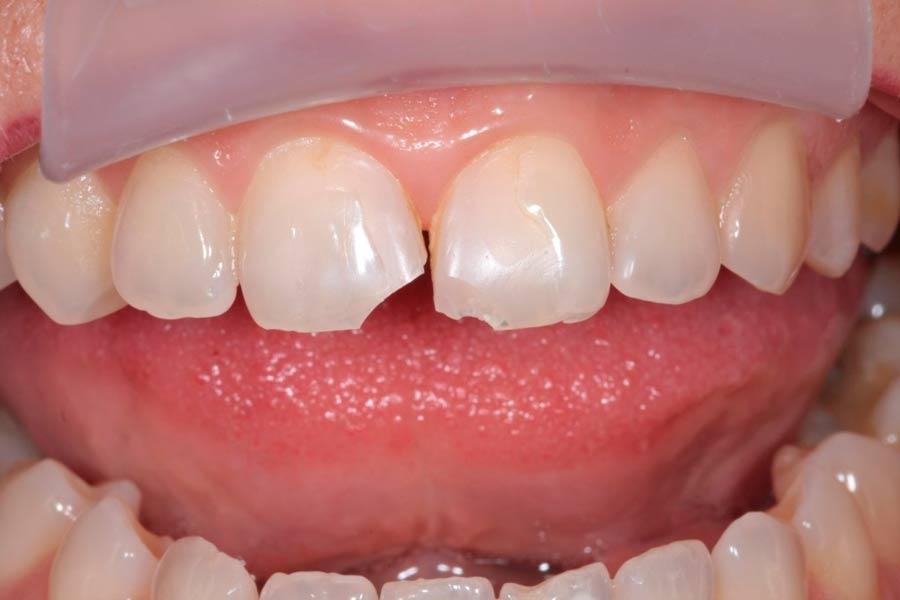 Тріщини зубів: причини, наслідки, способи лікування