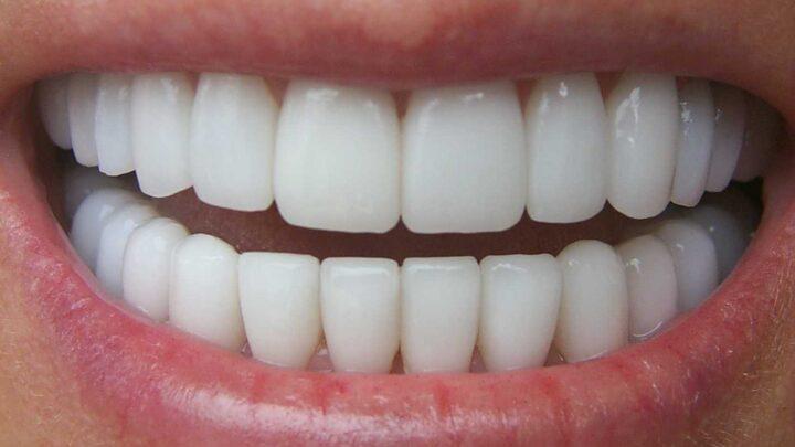Що таке естетична реставрація зубів: способи, етапи і свідчення
