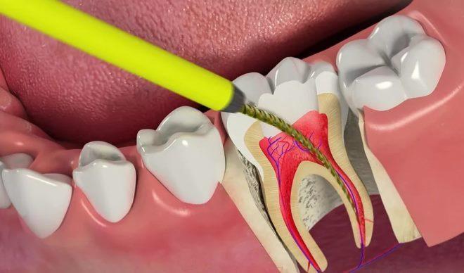 Навіщо видаляти нерв зуба, методи видалення нерва зуба