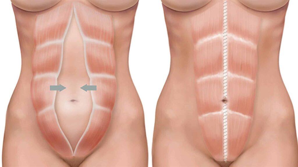 Як визначити диастаз м'язів - ознаки діастаза живота