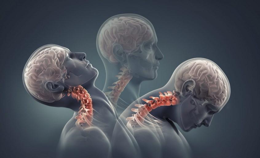 Травми шийного відділу хребта: наслідки та реабілітація