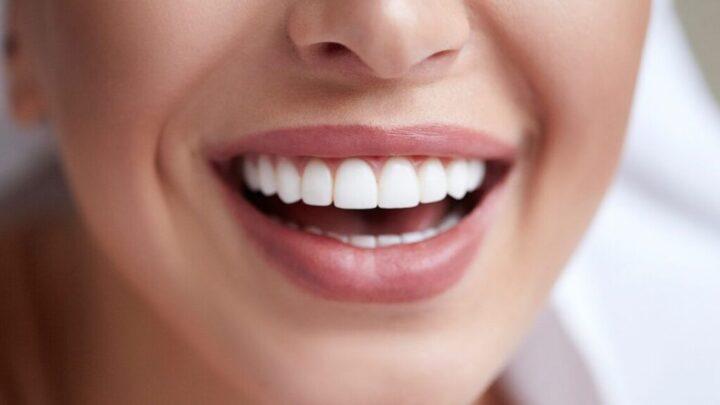 Відбілювання зубів: види і способи